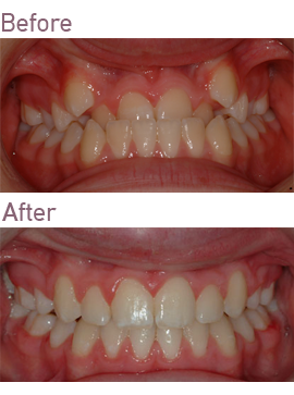 Orthodontic Treatment at Surbiton Smile Centre in Surbiton, Surrey