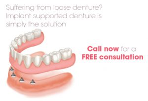 Suffering from a loose denture? Contact Surbiton Smile dental centre