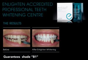 Surbiton Smile are an Enlighten Accredited professional teeth whitening centre