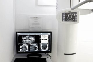 CT SCAN & OPG