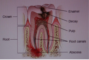 Tooth damaged by tooth decay