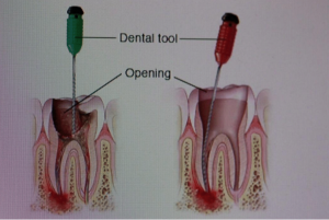 how root canal is performed