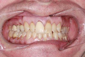 tooth damage