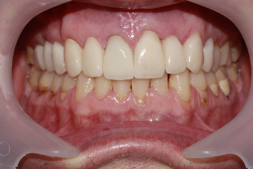 tooth damage repaired