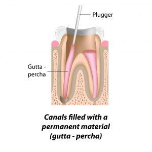 plugger diagram