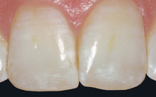 close up of incisors