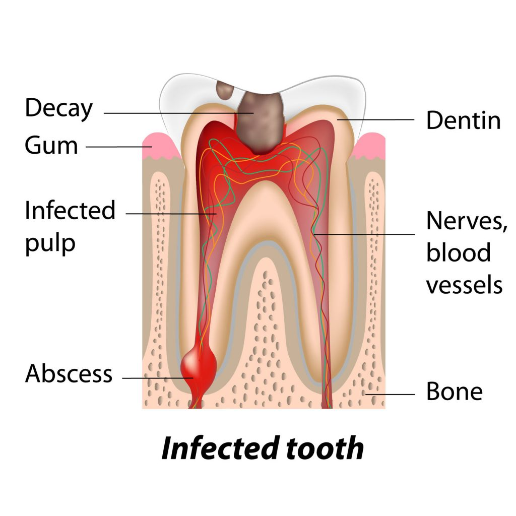 damaged tooth diagram