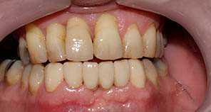 Single Dental Implant post surgery