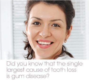 Periodontal Treatment - Available at Surbiton Smile Dental Centre