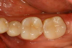 This image shows full mouth reconstive implant surgery, view of the molars from the top