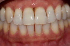 Patient post Periodontal Disease treatment, available at Surbiton Smile Dental Surgery