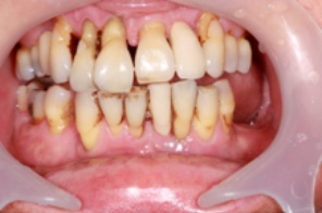 This another photo of a patient with Advanced Periodontal Disease