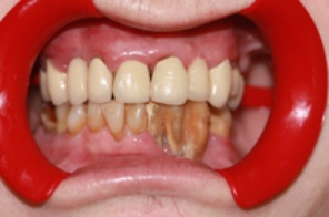 This is a phot of a patient with Advanced Periodontal Disease