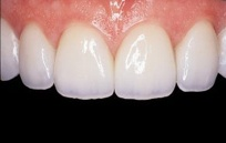 This other image shows a nice smile and veneers after being treated by Surbiton Dental Studio
