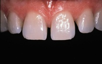 This image shows veneers after being treated by Surbiton Dental Studio